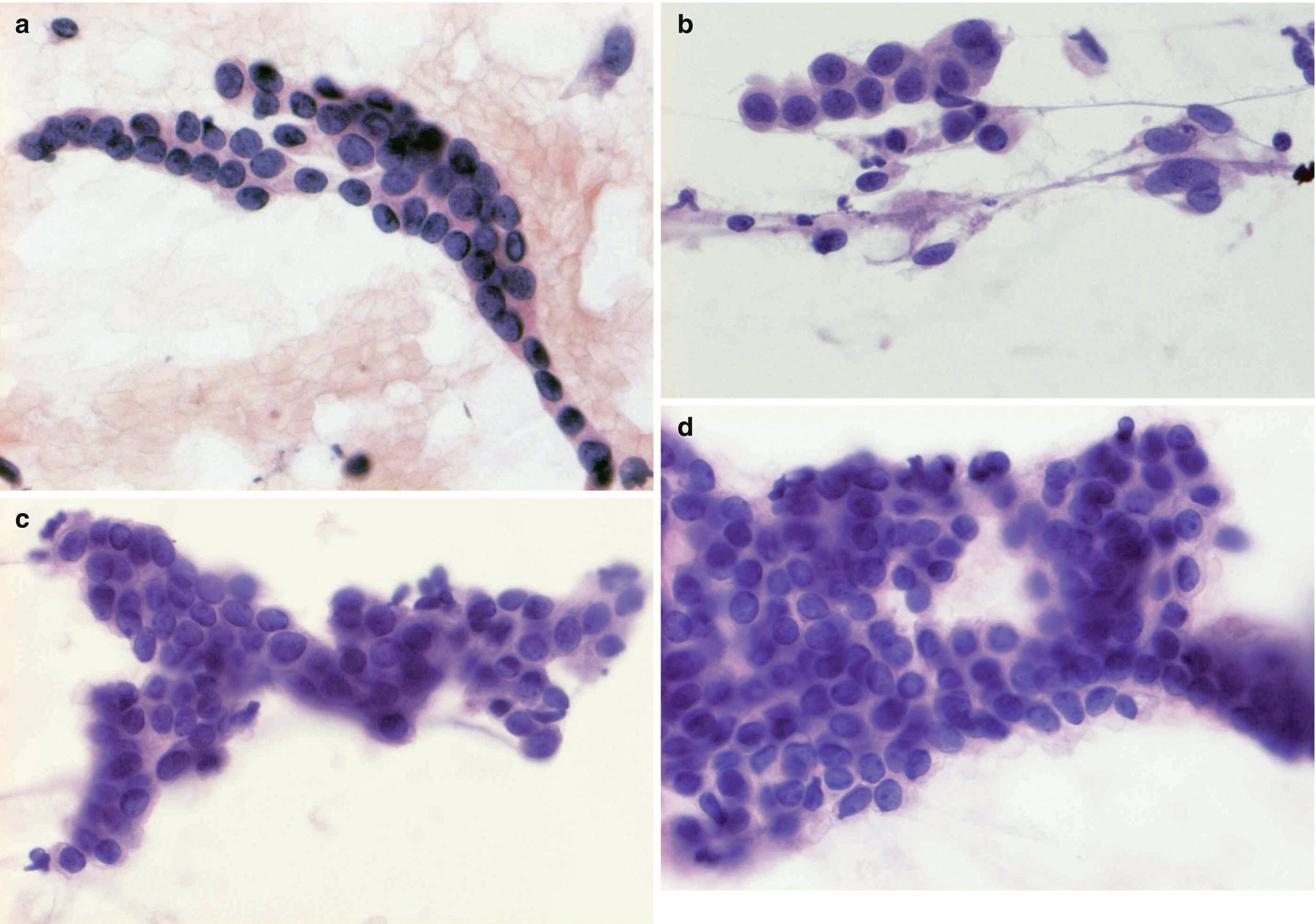intraductalis papilloma c3