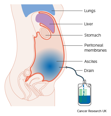peritonealis rák 4. stádium)