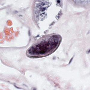 enterobius vermicularis fertőzés forrása)
