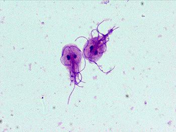 Enterobius vermicularis jaja, Giardia zwalczanie Pasozyt giardia u psa