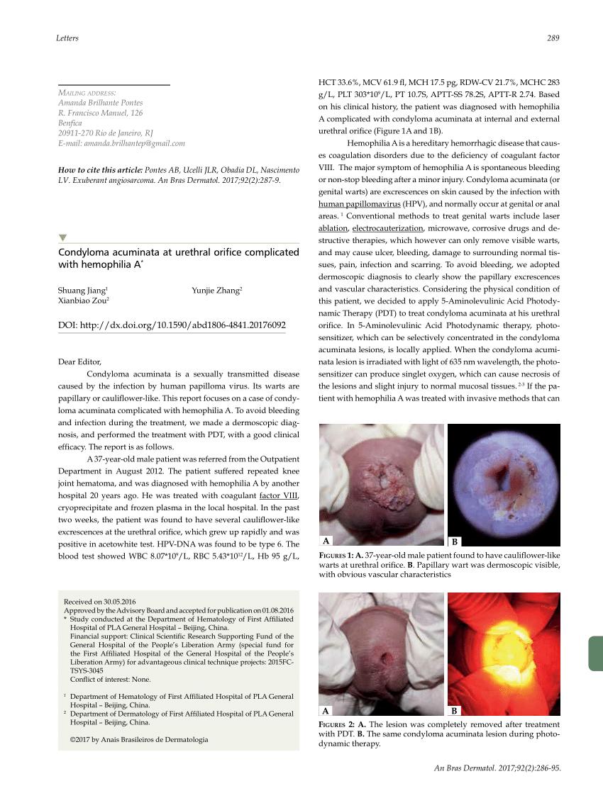 Papillóma kezelése a nők száján - A vírus October