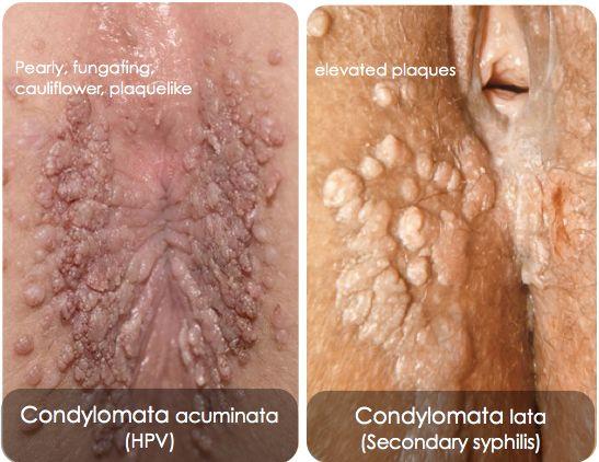 condyloma vagy papilloma különbségei