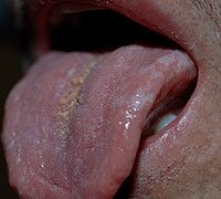a condyloma tünetei a szájban