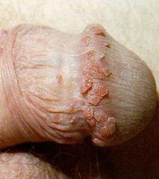 a genitális szemölcsök gyógyulásának kriodestrukciója széles bordás üreg