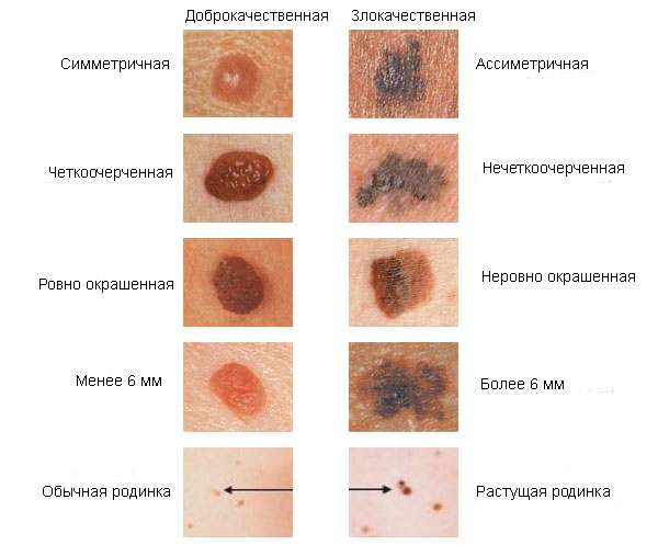papillómák a gyomorban, aki meggyógyul