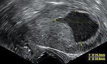 endometrium rák tamoxifen