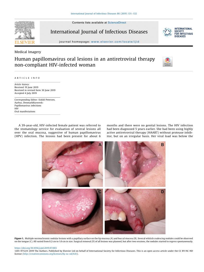 humán papillomavírus és HIV)