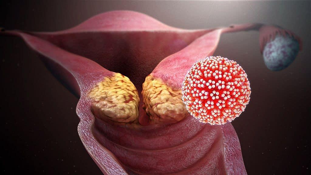 az ember által továbbított papilloma vírus
