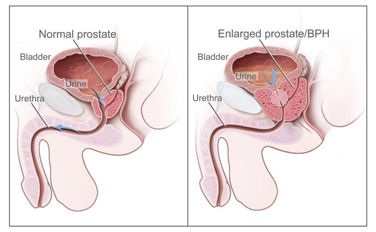 jóindulatú prosztata hiperpláziával járó rák