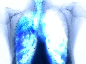 agresszív rákos hólyag végbélrák útja