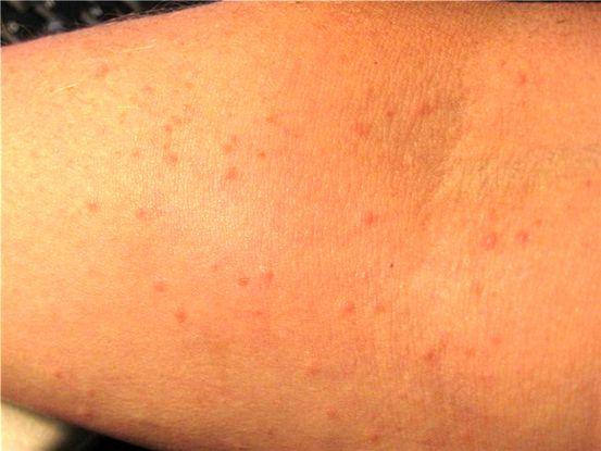 a schistosomiasis tünetei