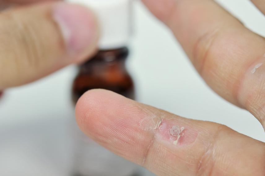 A tiszta természetű kettőspont méregtelenítő tisztítja a mellékhatásokat