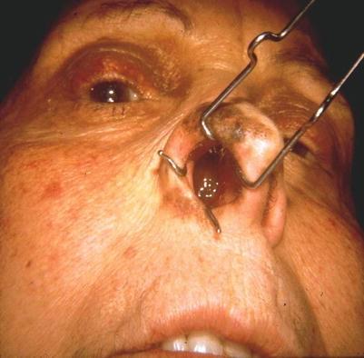 hpv impfung rki moxibustion szemölcsök szemölcsökkel