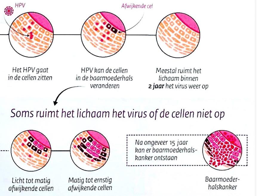 az ababaca paraziták kezelése a hpv és a rák később az életben