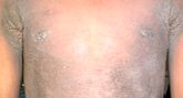 gyomorrák acanthosis nigricans