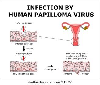 HPV humán papilloma vírus))