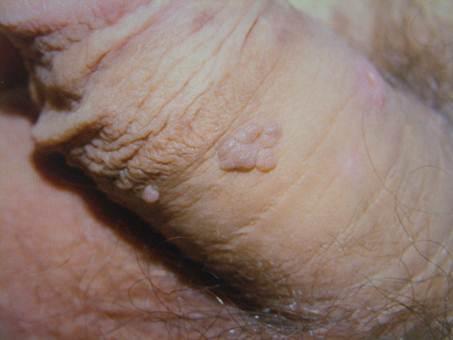 Lézeres kezelések méhszájseb és HPV fertőzések legyőzésére - TritonLife Genium