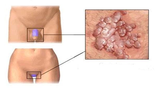 a hüvelyi nyálkahártya genitális szemölcsei