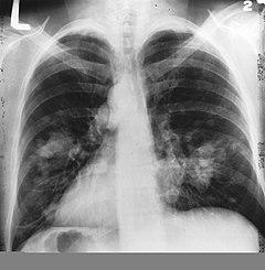Hogyan kezelhető sikeresen egy négyes stádiumú tüdődaganat? - Harcosok Klubja videón