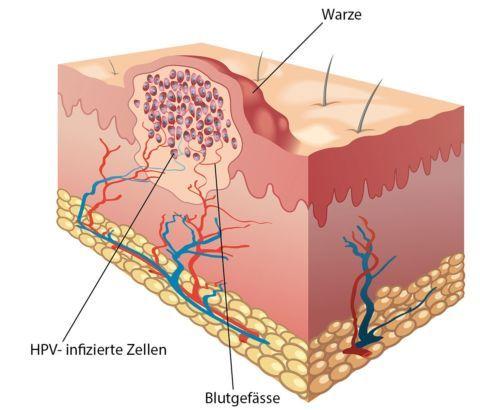 papilloma vírus hpv torok