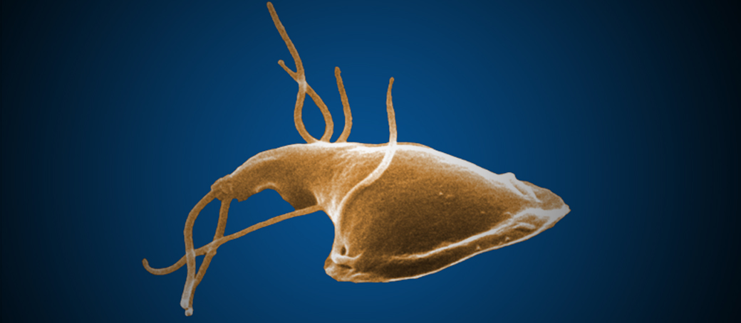 giardiasis protozoa)