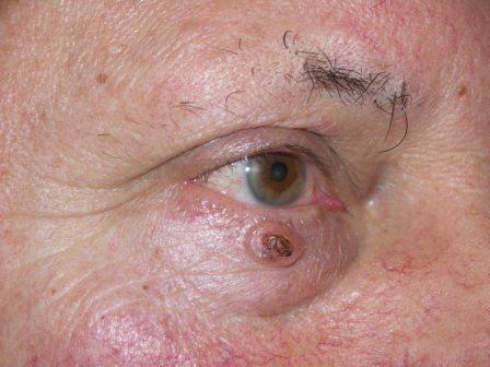 A szemhéj szemölcsök okai és kezelések