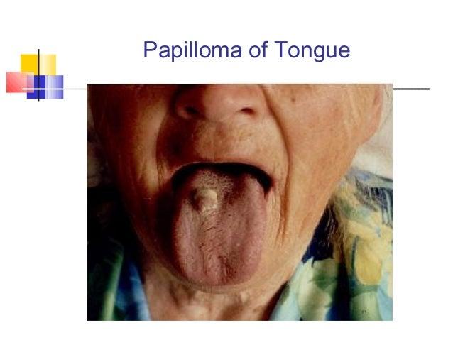 Hpv szemolcs vegbel. Virus papiloma genotipo 16
