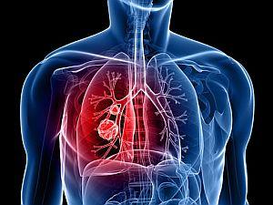 a tüdőrák okai diagnosztikus vastagbélrák