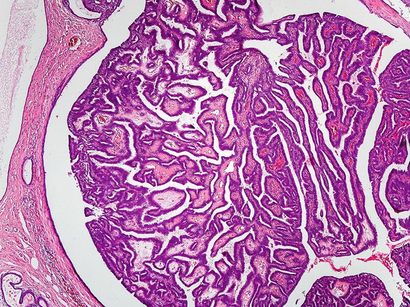 hpv ember vizeletvizsgálata papilloma anyajegyek a nyakon