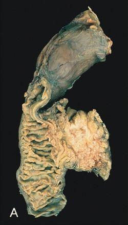 biliáris rák prognózisa)