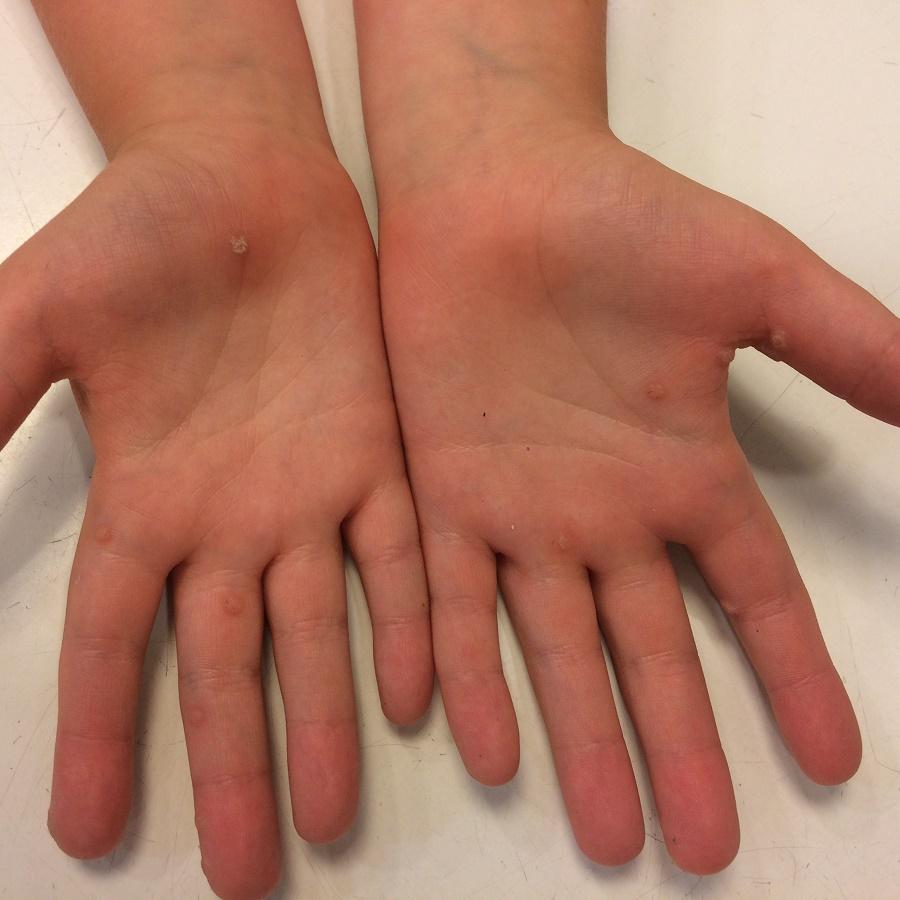 szemölcsök az ujjakon