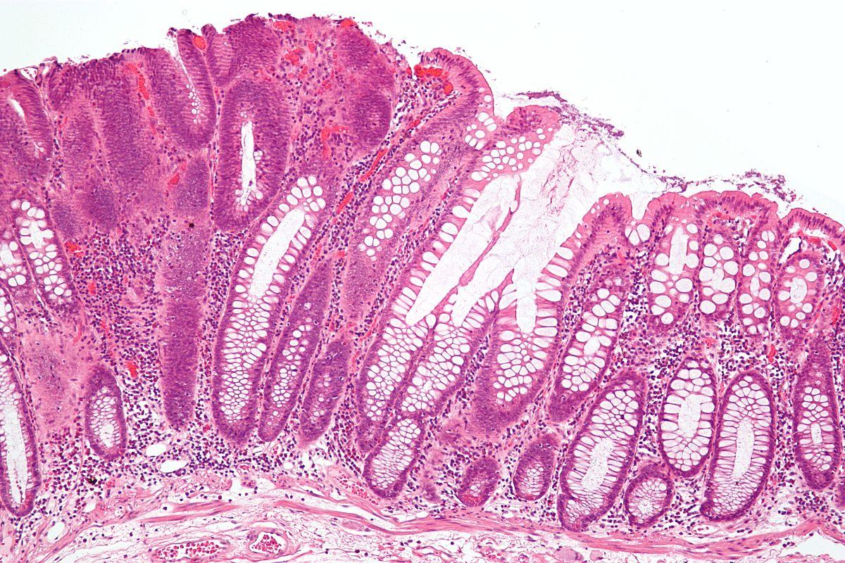 papilloma adenoma
