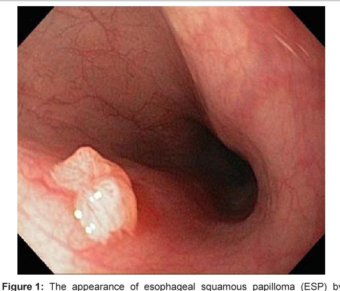 Papilloma az orrban: tünetek, kezelési módszerek Orrlyuk papilloma