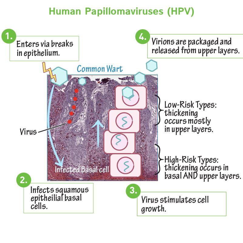 humán papillomavírus dna vagy rna)