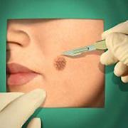 előkészítés a condyloma eltávolítására a vér méreganyagoktól való megtisztítása