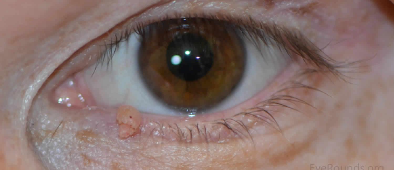 eltávolított papillóma a szemhéjon