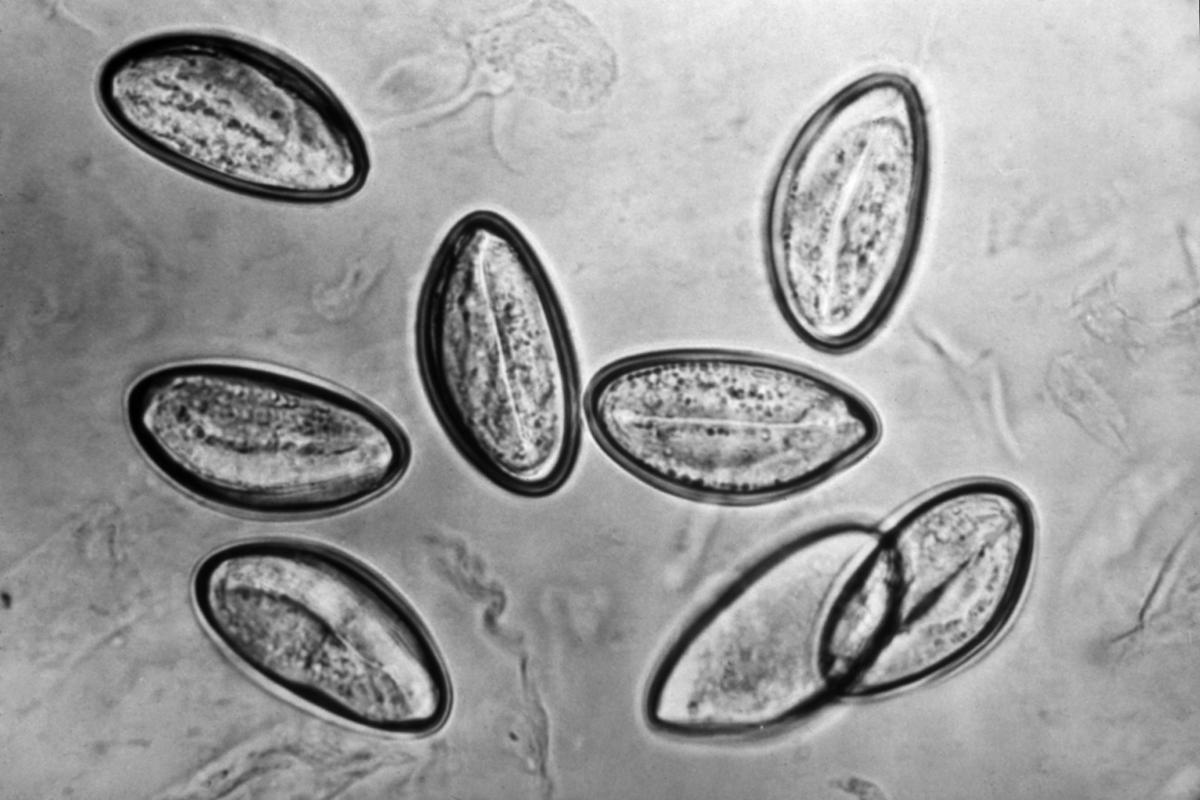 az enterobiasis diagnosztizálásának fő módszere