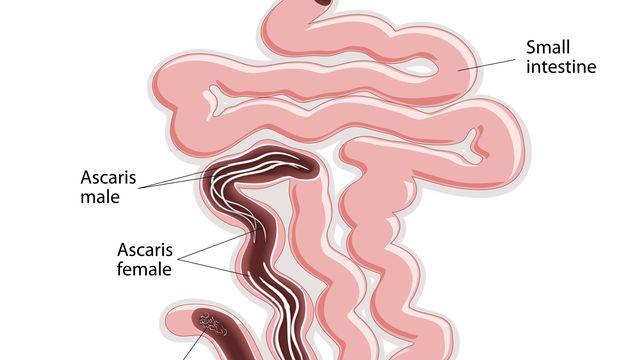 enterobius vermicularis fertőzés forrása vastagbél méregtelenítés természetes gyógymód
