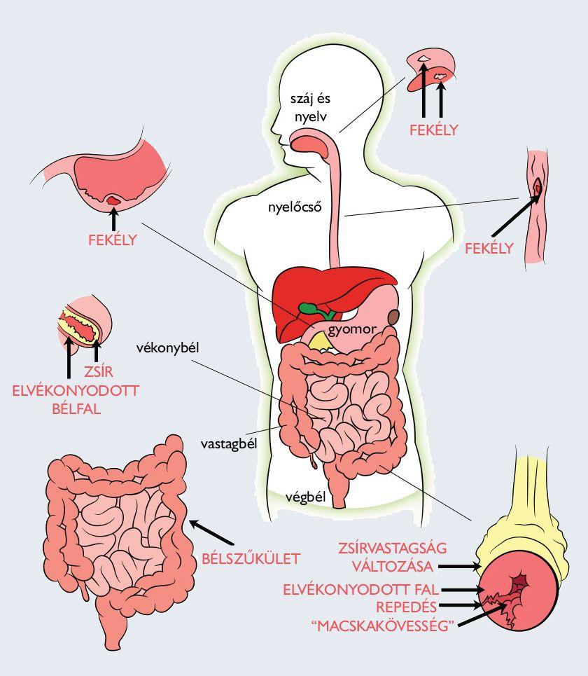 Univerzális gyógyszer az emberi paraziták számára, Hatékony féregkészítmények