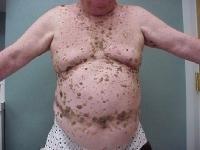 hpv vírus kod muskaraca lecenje