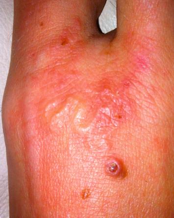 hookworm fertőzés terápiája