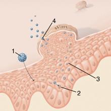 kako se leci humani papilloma vírus a papillómák megjelenése a testen, okai és kezelése