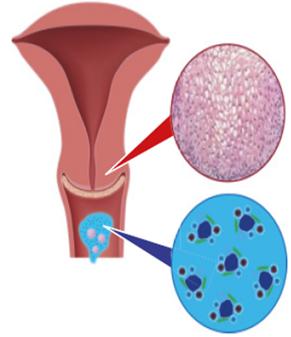 HPV leküzdése: táplálkozási, életmódbeli tanácsok - vedd fel a harcot!