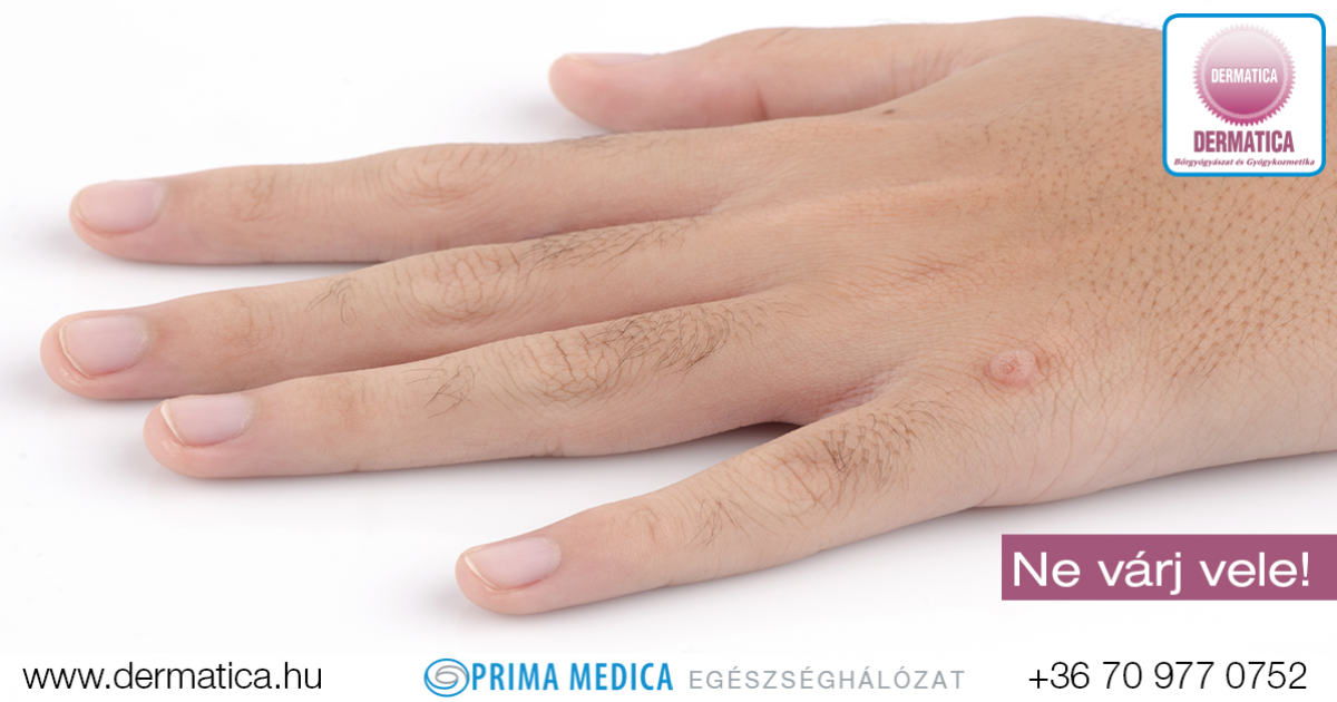 hpv vírus szemölcs kezét