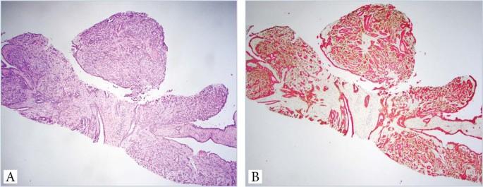 papillómák paraziták jelenléte a testben paraziták kezelése és tünetei az emberi testben