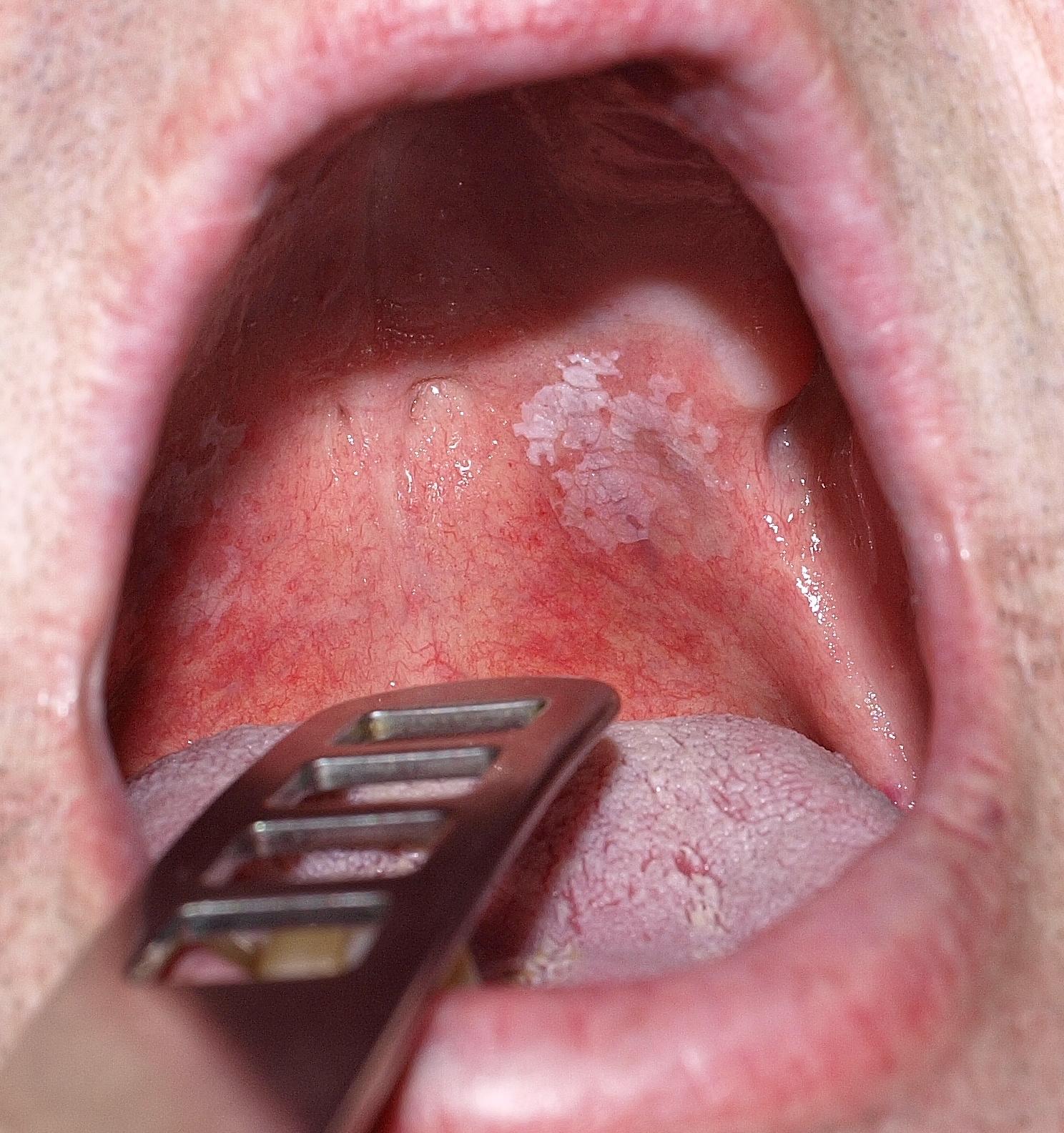 kezelje a szemölcsöket a szájban ami papilloma a gyermekeknél