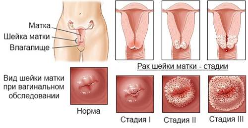 nemi szerv rákos papillomavírus