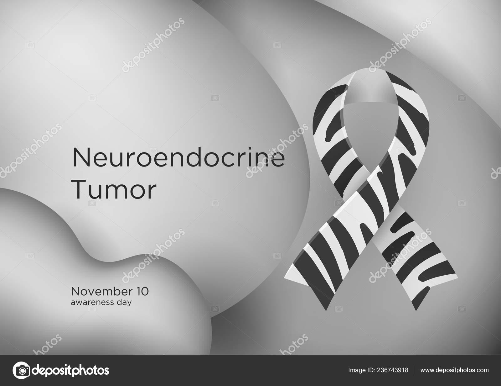 neuroendokrin zebra rák)