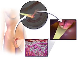 Tendinosis gluteus medius kezelés psoriasis kezelésére, hogyan lehet gyógyítani az oka a psoriasis