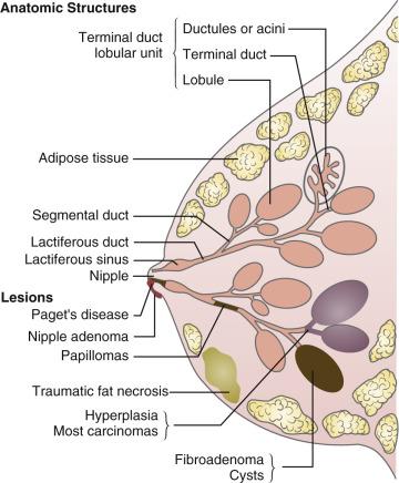 papilloma lactiferous csatorna
